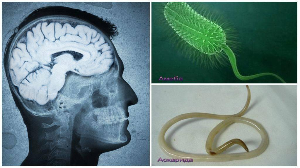 паразиты мозга
