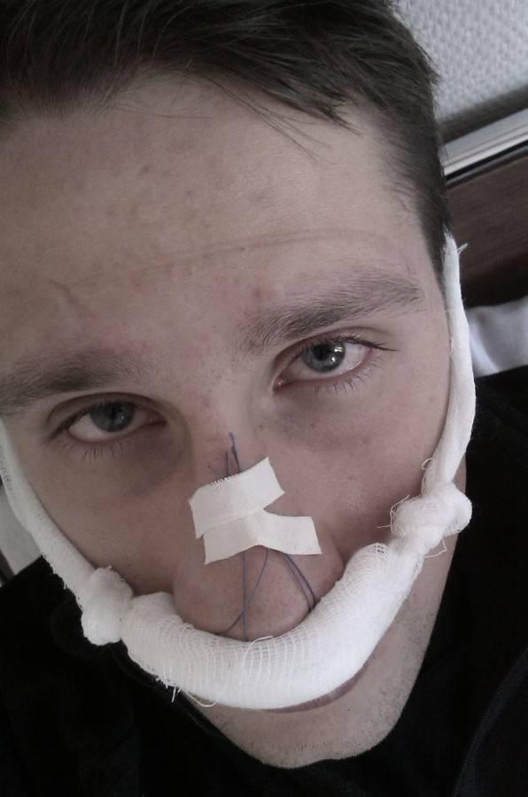 кривой нос что делать