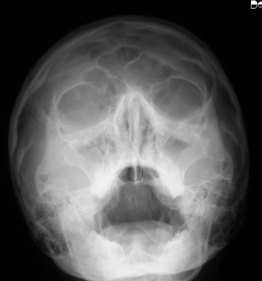 как часто можно делать рентген пазух носа