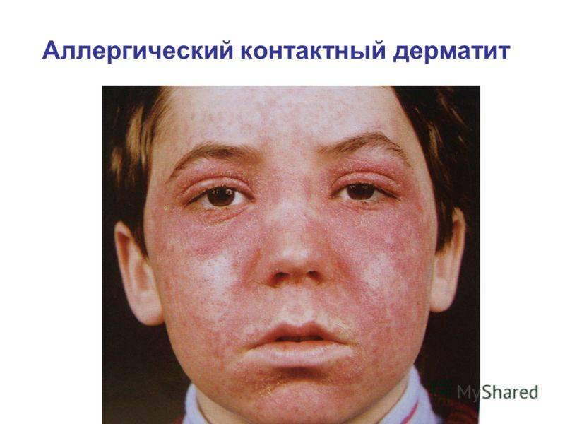 Аллергический дерматит у взрослых — лечение, причины, симптомы