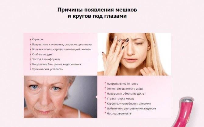 Как избавиться от темных кругов под глазами – 10 народных способов - народная медицина | природушка.ру