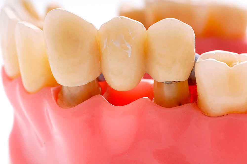 Какие бывают виды протезирования зубов?