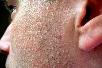 Причины неприятного запаха за ушами у детей и взрослых