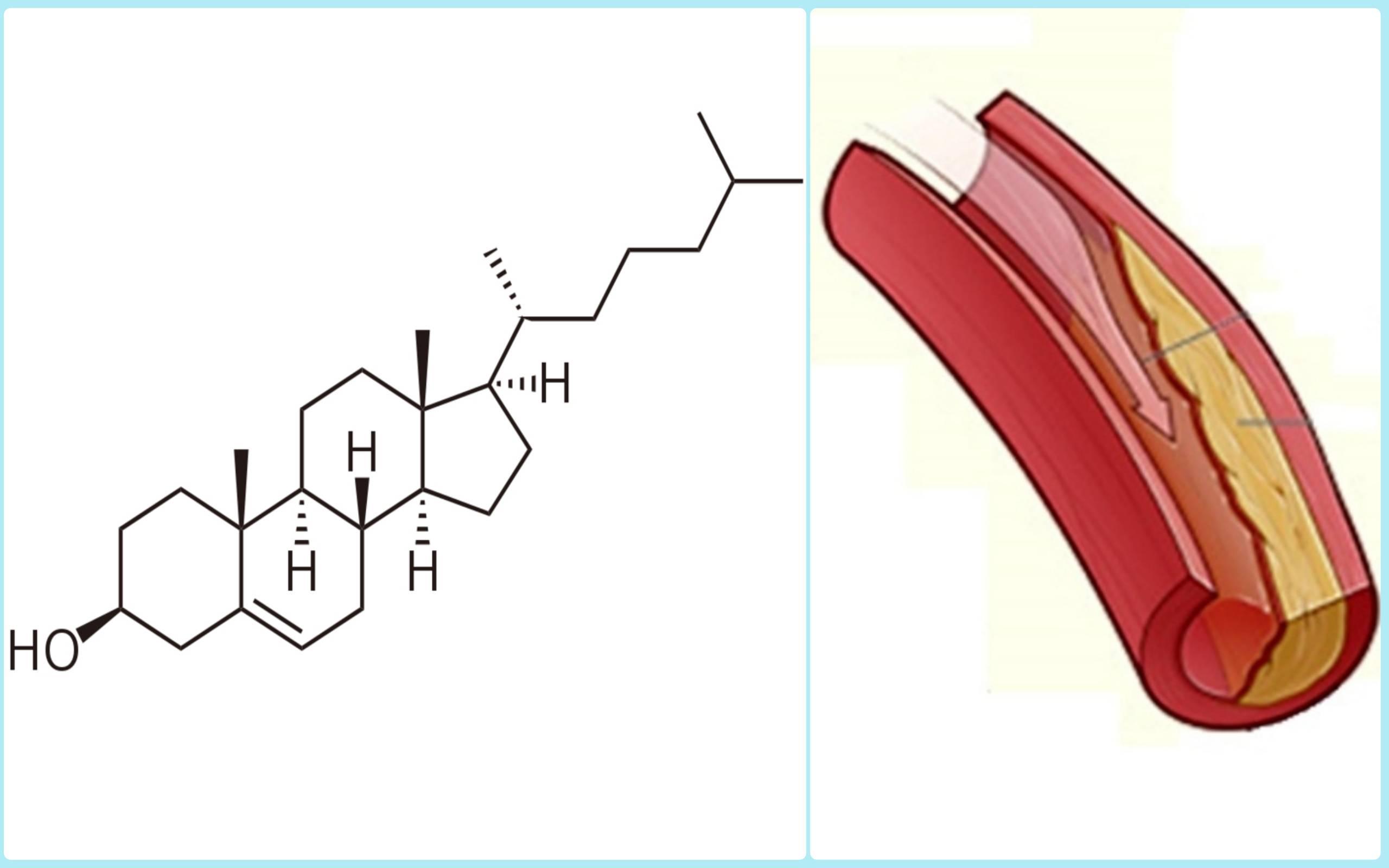 таблетки от холестерина в сосудах
