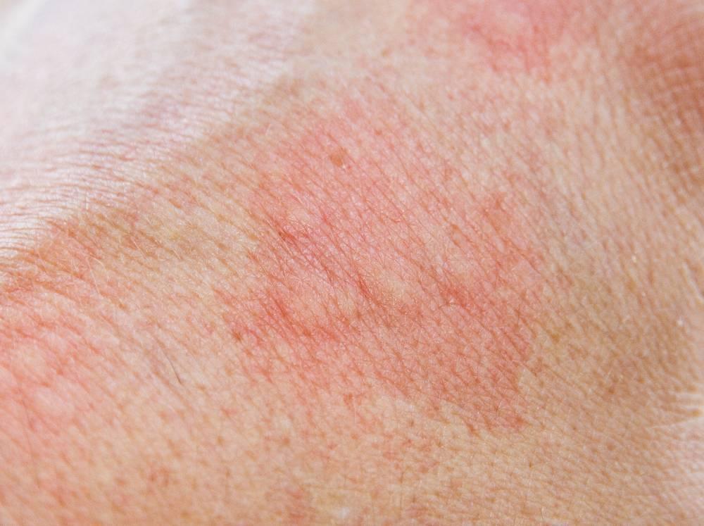 Натуральные средства лечения дерматита – 15 целебных трав - народная медицина | природушка.ру