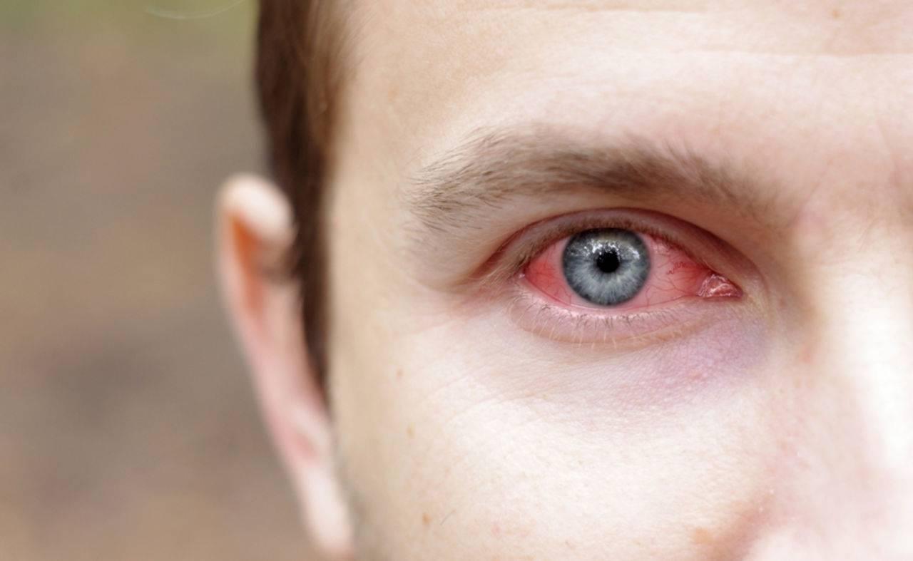 Герпес на веке глаза: симптомы и лечение заболевания