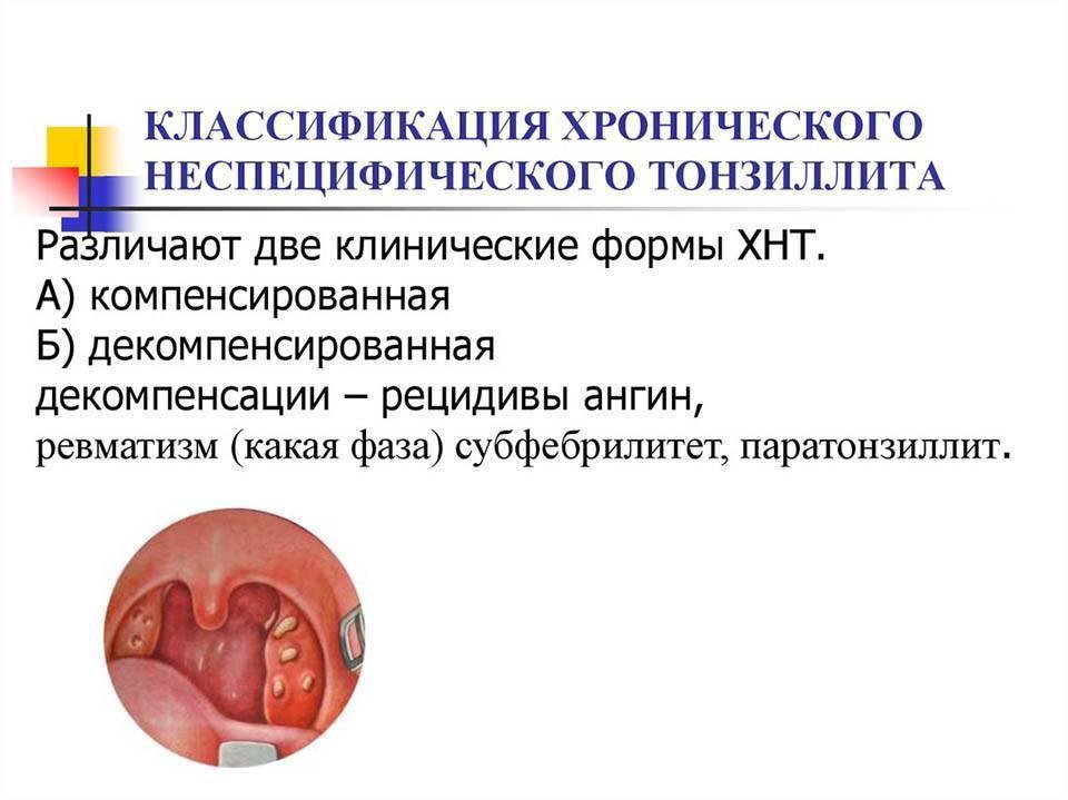 Лечение хронического тонзиллита у мужчин и женщин лор