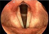 Спастическая дисфония: причины и провоцирующие факторы патологии, симптомы, лечение