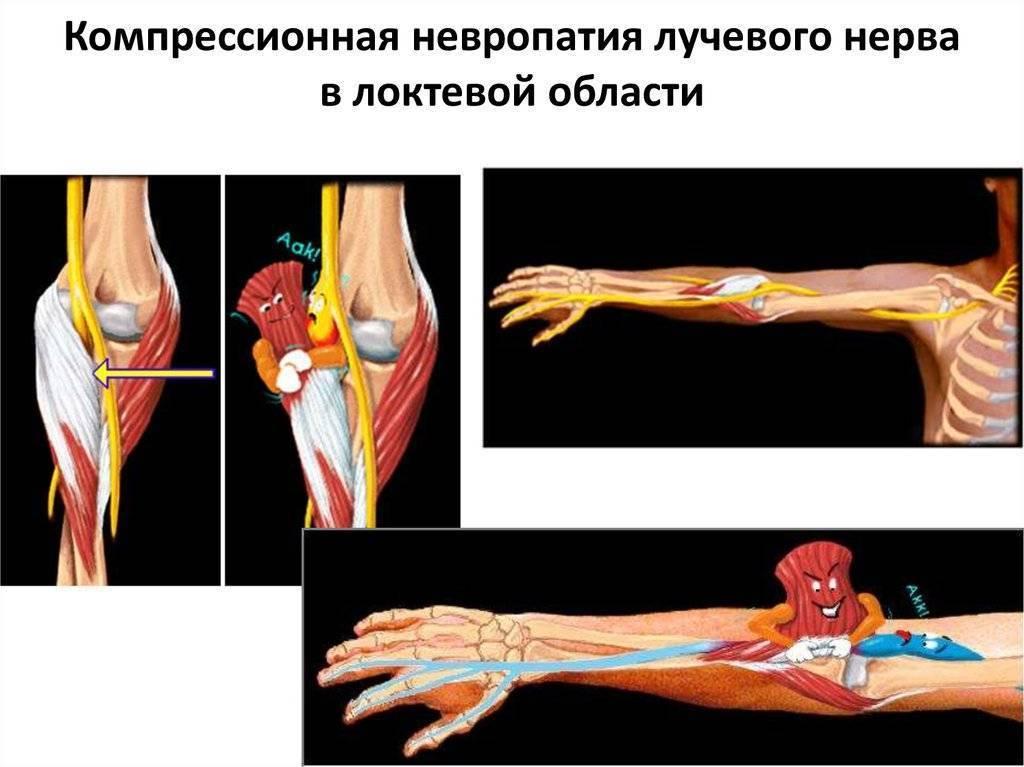 Невропатия лучевого нерва: симптомы, лечение