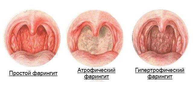Фарингит. симптомы, причины, лечение.