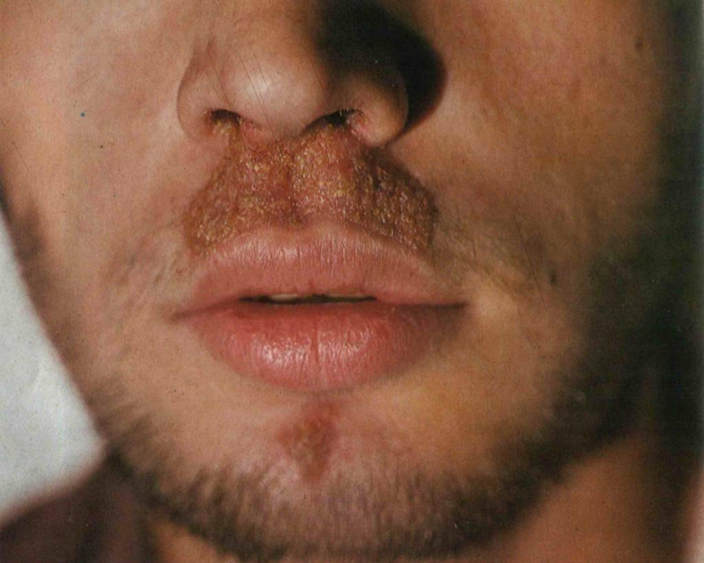 Проявления герпеса в носу у ребенка и методы лечения