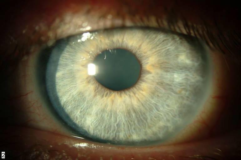 Как лечится воспаление радужной оболочки глаза?