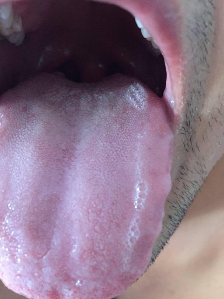 Сифилис во рту и горле: сифилитическая ангина, сифилис языка, гортани, глотки. много фото