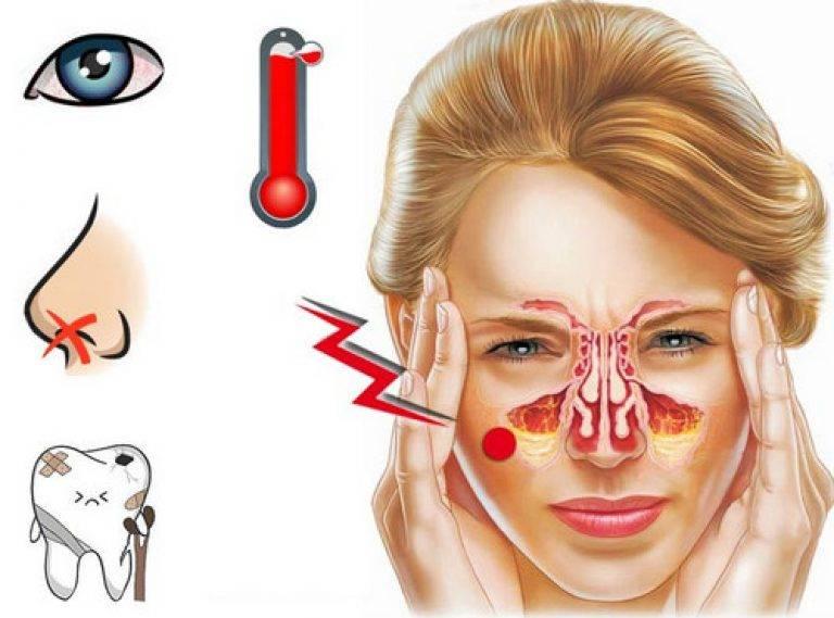 Болит голова заложен нос соплей нет