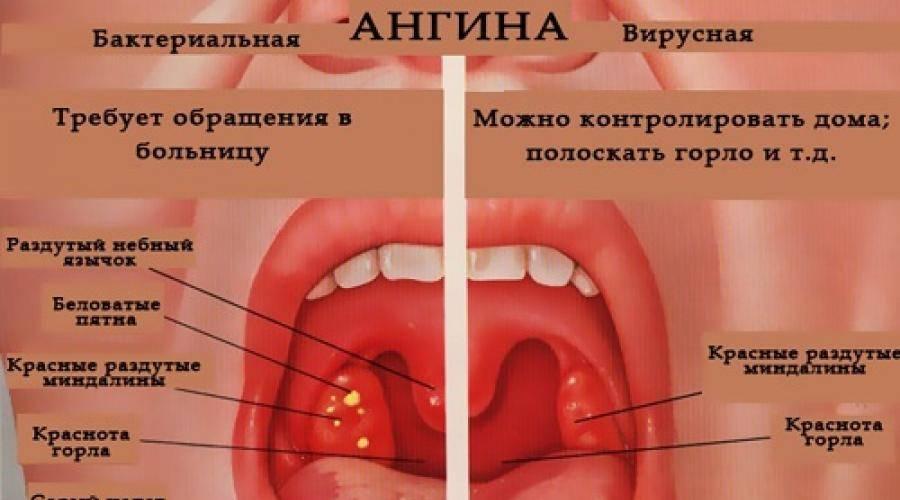 Особенности лечения ангины у детей 2-3 лет