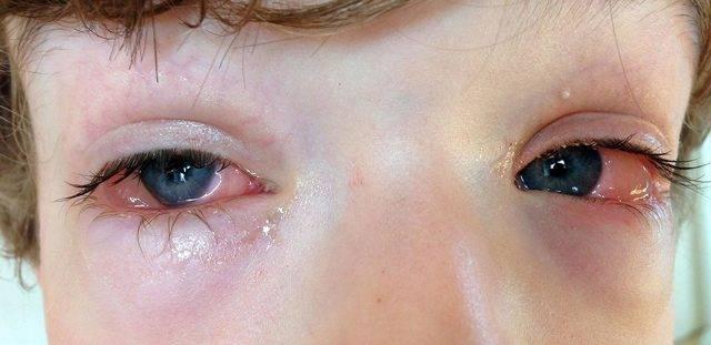 Аллергический конъюнктивит у ребёнка: симптомы, фото, лечение в домашних условиях