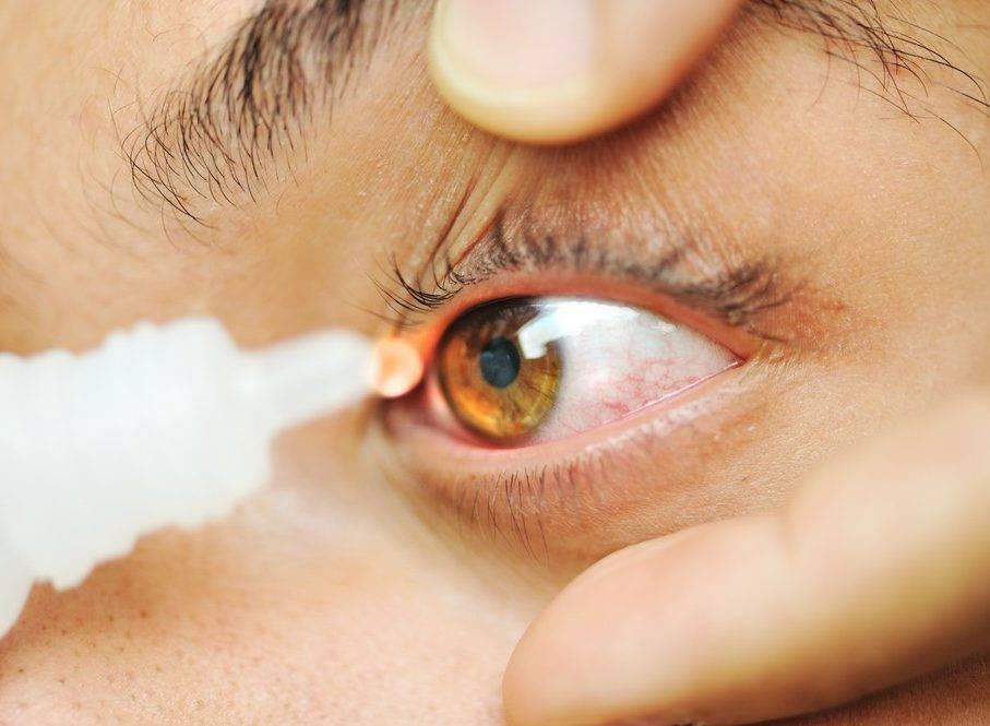 Лечение синдрома сухого глаза народными методами