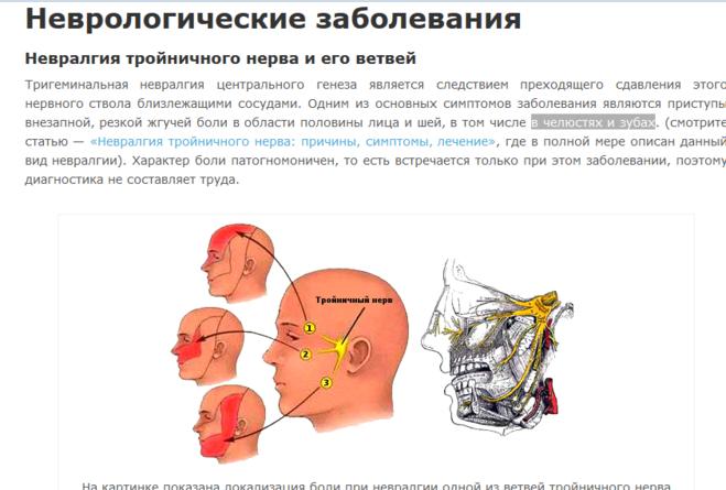 лицевая невралгия симптомы