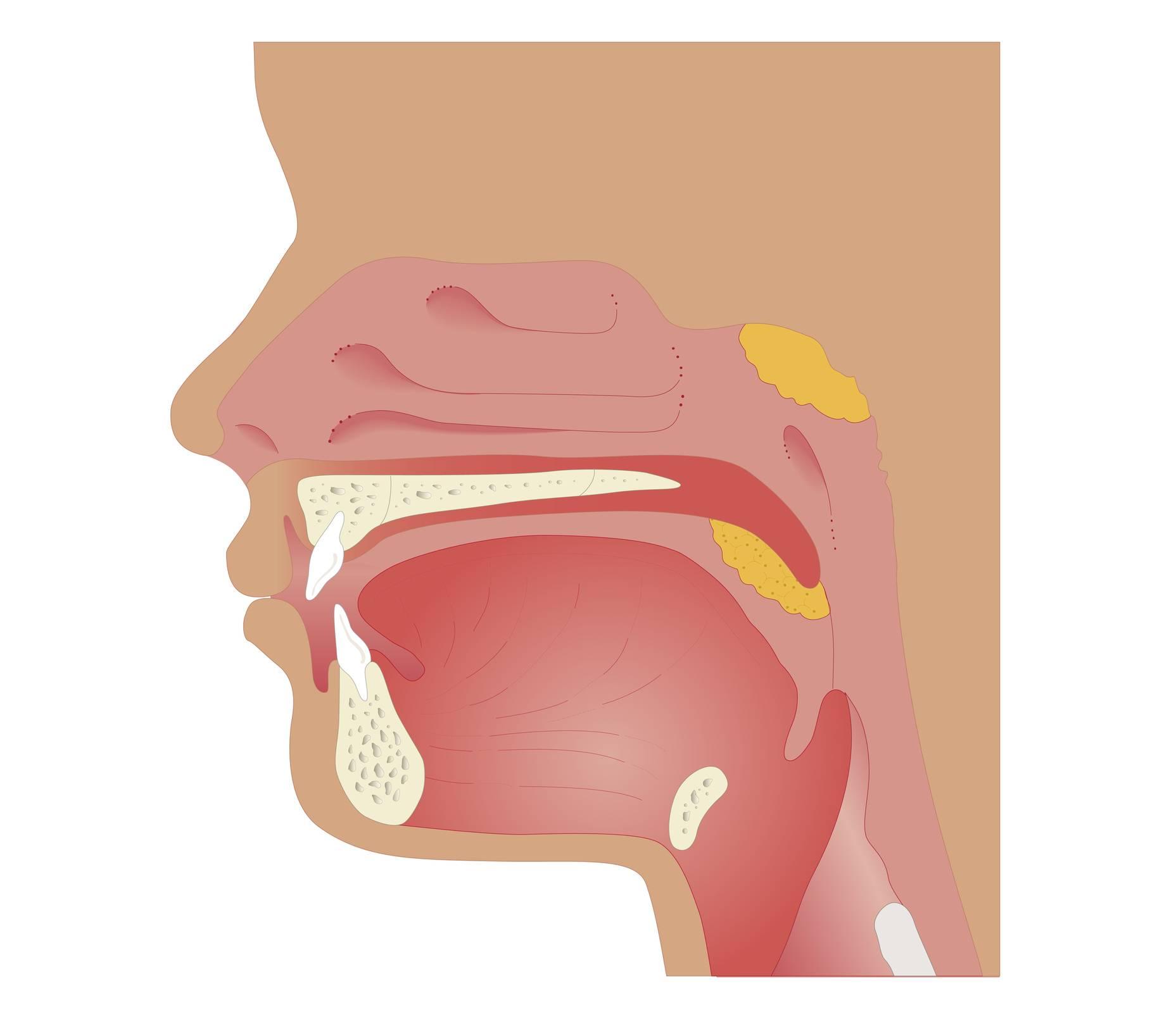 Аденоидит: причины, формы и степени, симптомы, тактика лечения