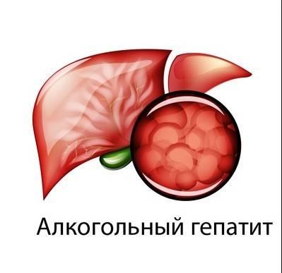 Что такое алкогольный гепатит, как он развивается