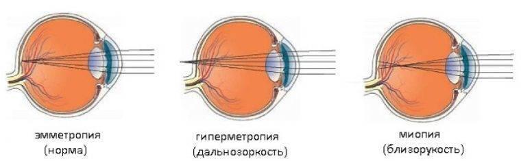 Что такое рефракция глаза, ее основные виды