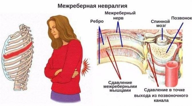 При невралгии может быть температура