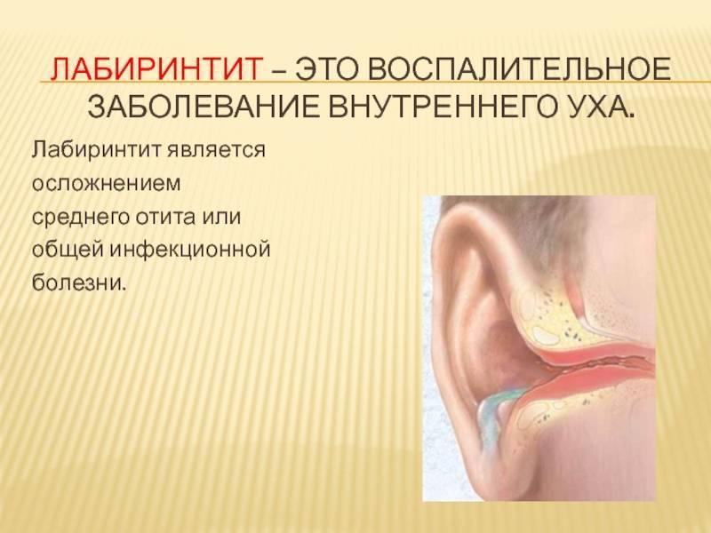 Причины, симптомы и лечение заболеваний уха у человека