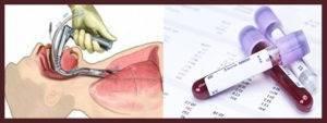 Какой онкомаркер показывает рак горла