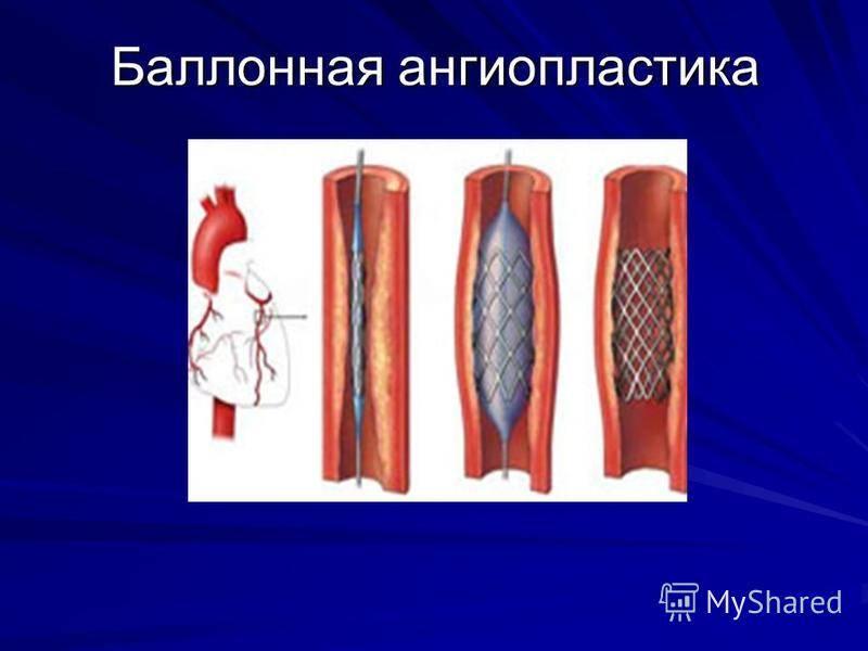 Пмжа сердца что это. чрескожная транслюминальная коронарная ангиопластика чтка пна с имплантацией стента