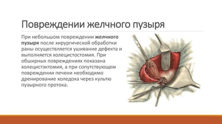 разрыв желчного пузыря