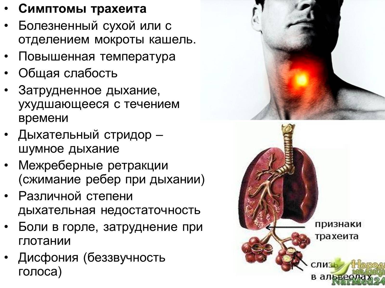 острый трахеит симптомы и лечение у взрослых