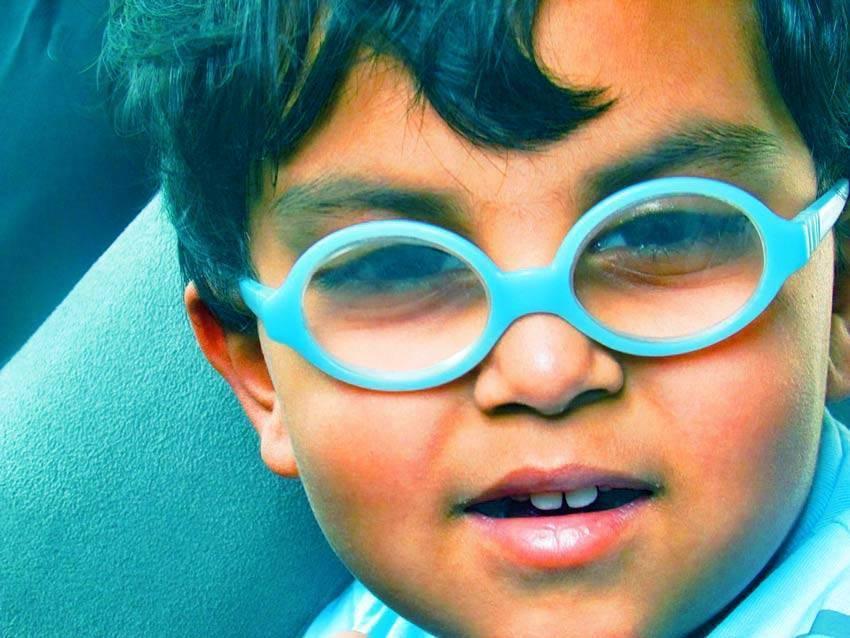 Астигматизм сложный гиперметропический, очки.