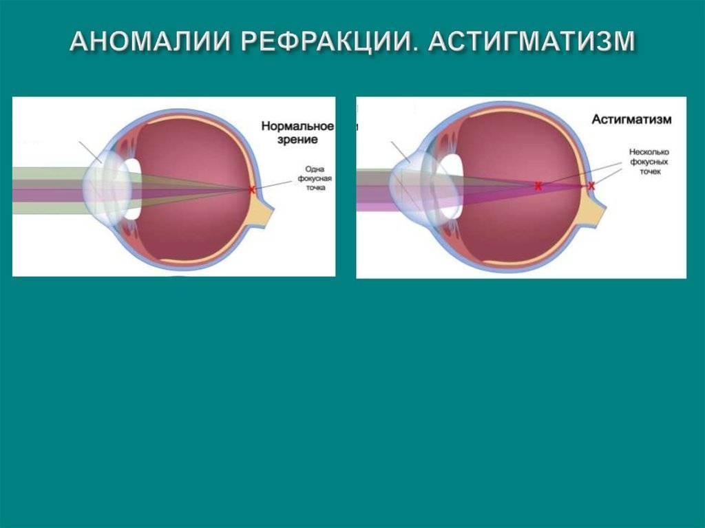 Аномалии рефракции. эмметропия. близорукость ( миопия ). дальнозоркость ( гиперметропия ). астигматизм.