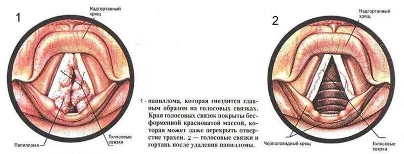 Папилломатоз гортани: лечение папилломы в горле
