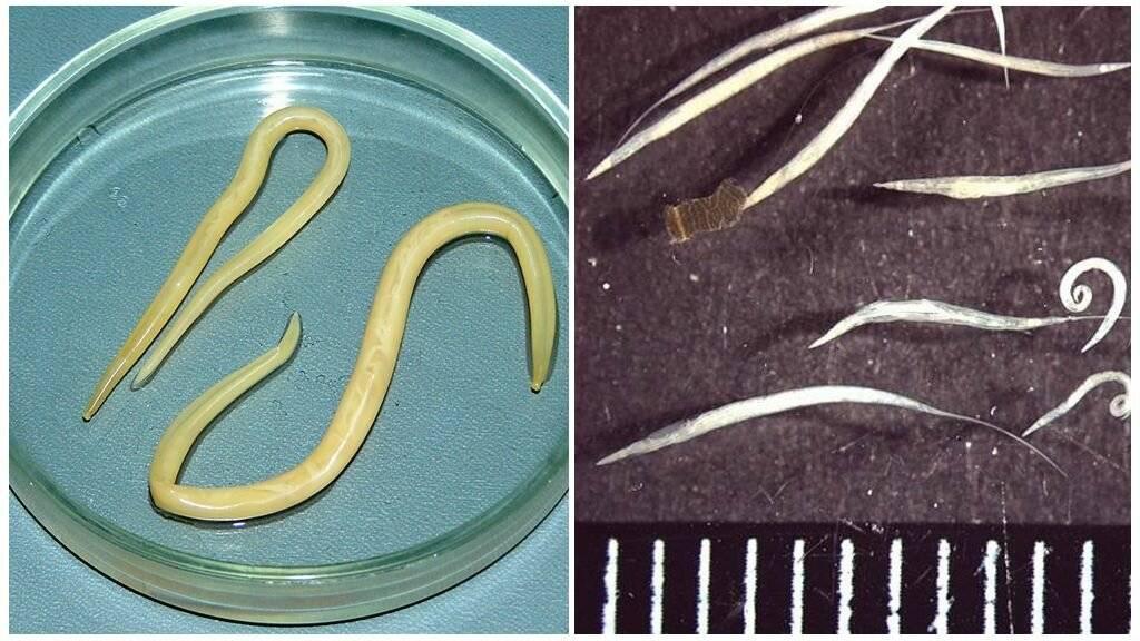 Виды глистов у человека: описание, 10 фото