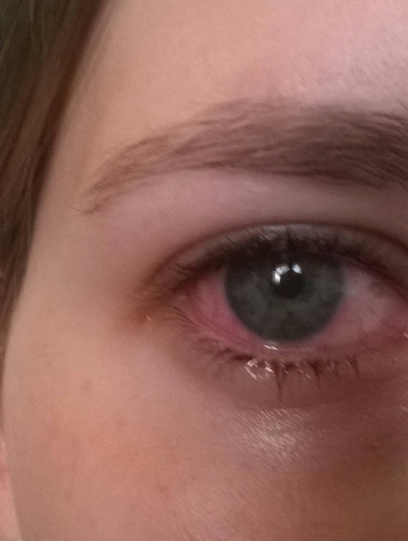 слезятся глаза красные глаза