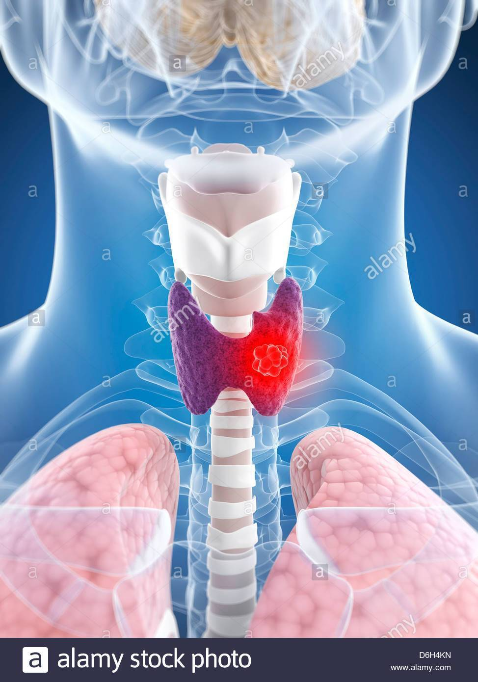 Как лечить рак гортани и горла народными средствами