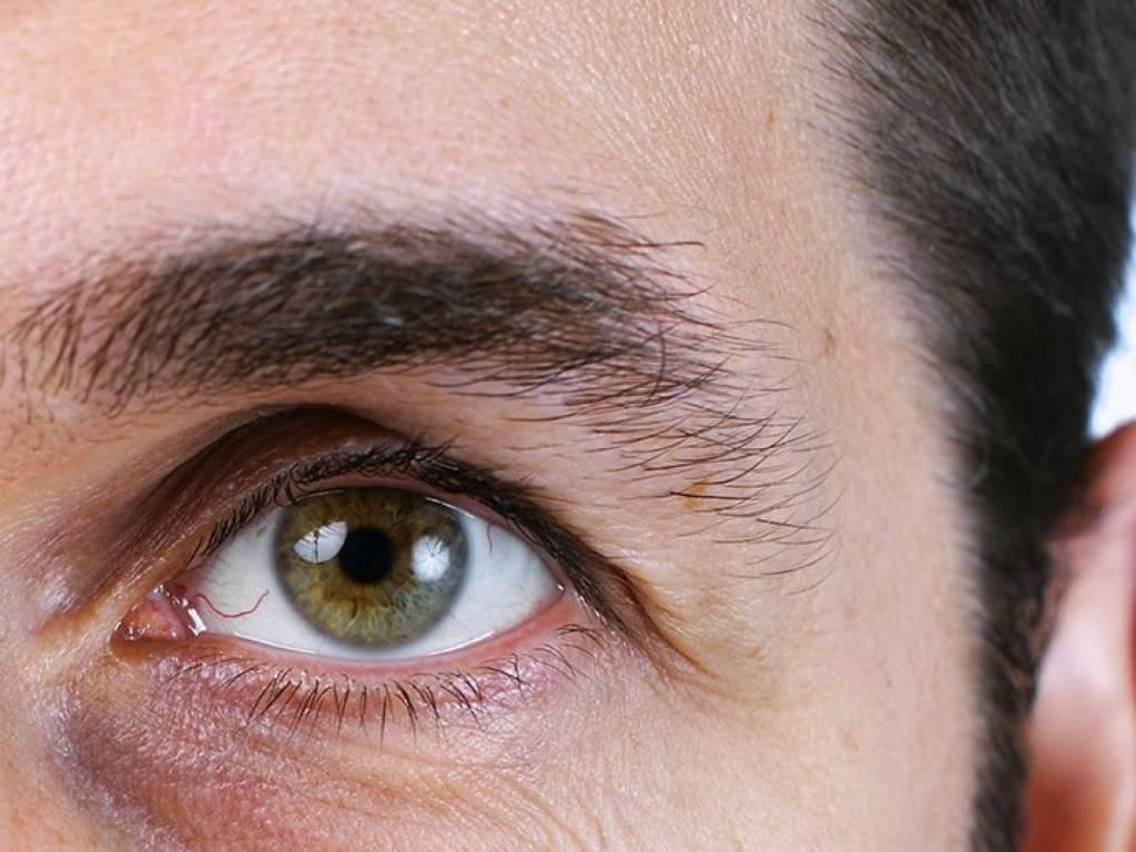 гельминты в глазах симптомы