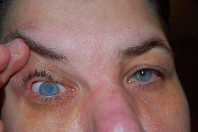 Болят глаза после бани на следующий день