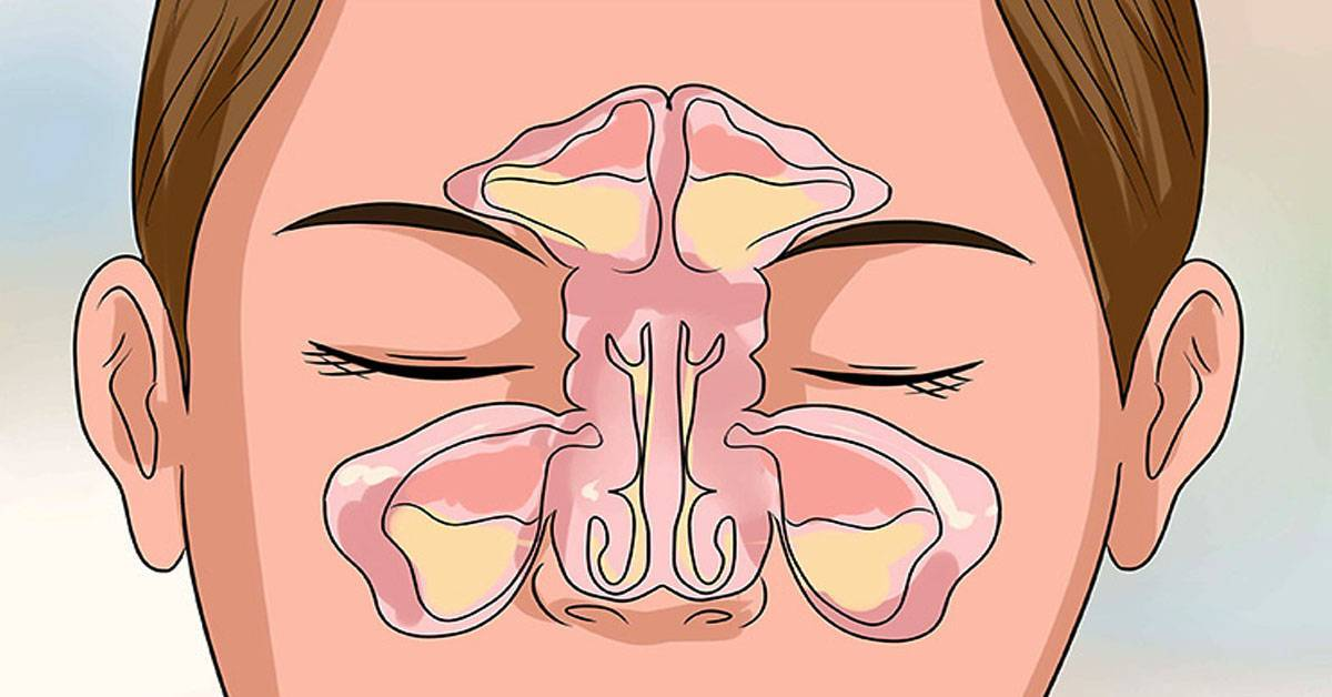 заложенность носа с одной стороны причины