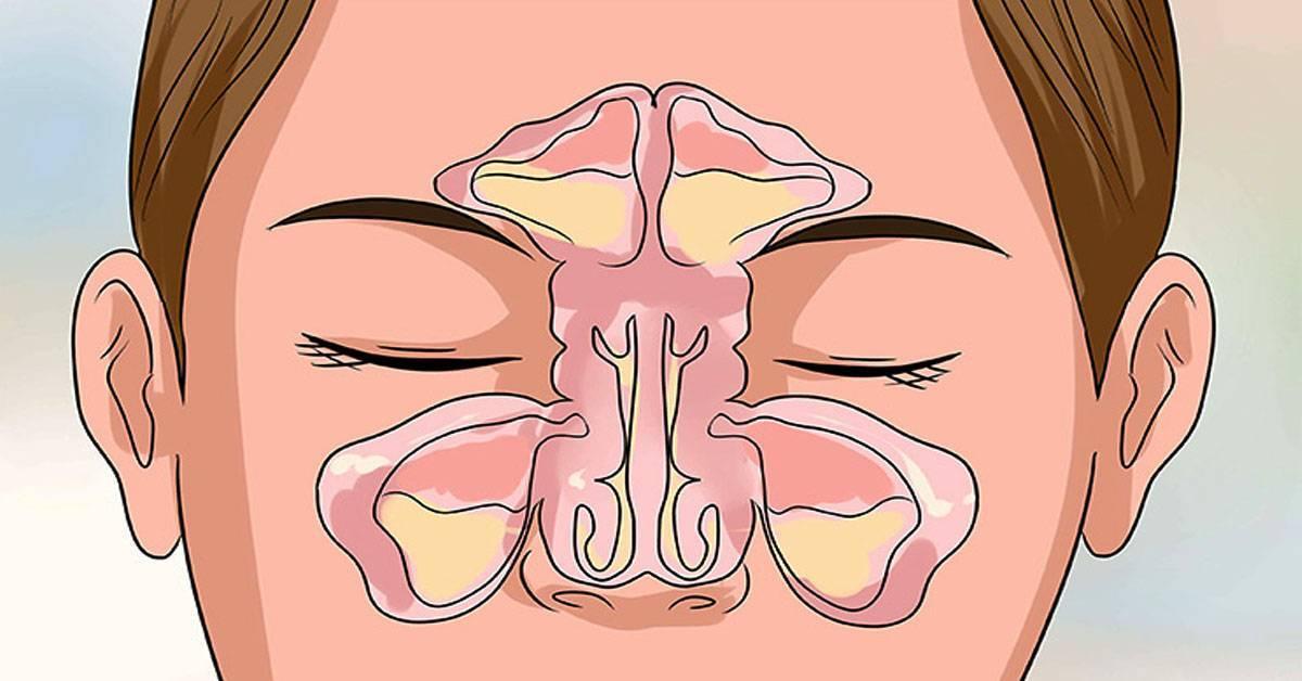 каждое утро заложен нос