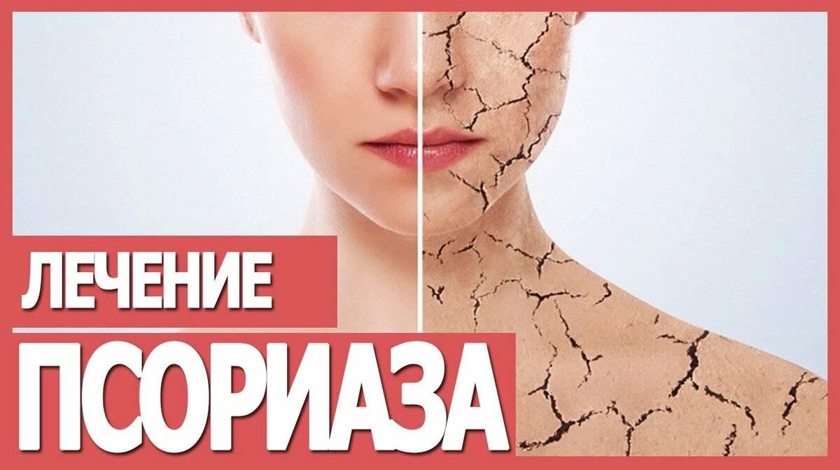 Способы лечения псориаза: чем лечить, как бороться и победить болезнь