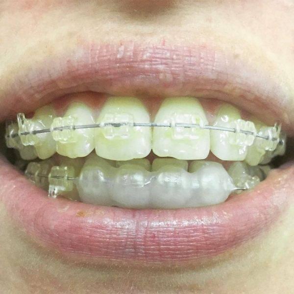 Воск для брекетов — как пользоваться стоматологическими средствами