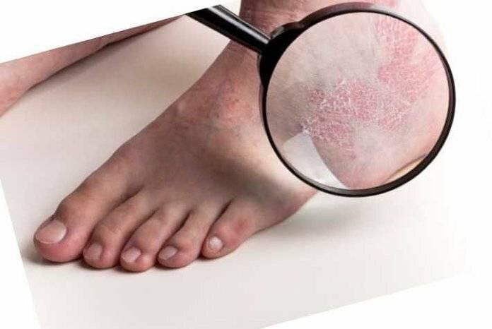 Причины и лечение ладонно-подошвенного псориаза