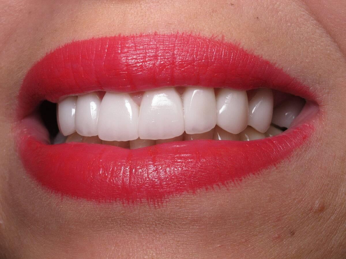 Виниры на передние зубы: что это, какие выбрать