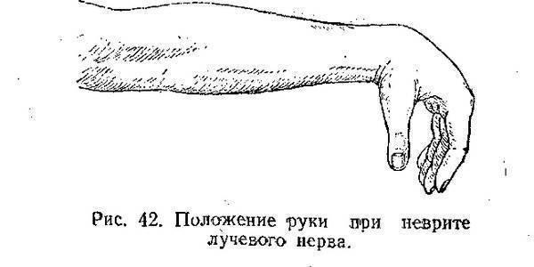 массаж при неврите лучевого нерва