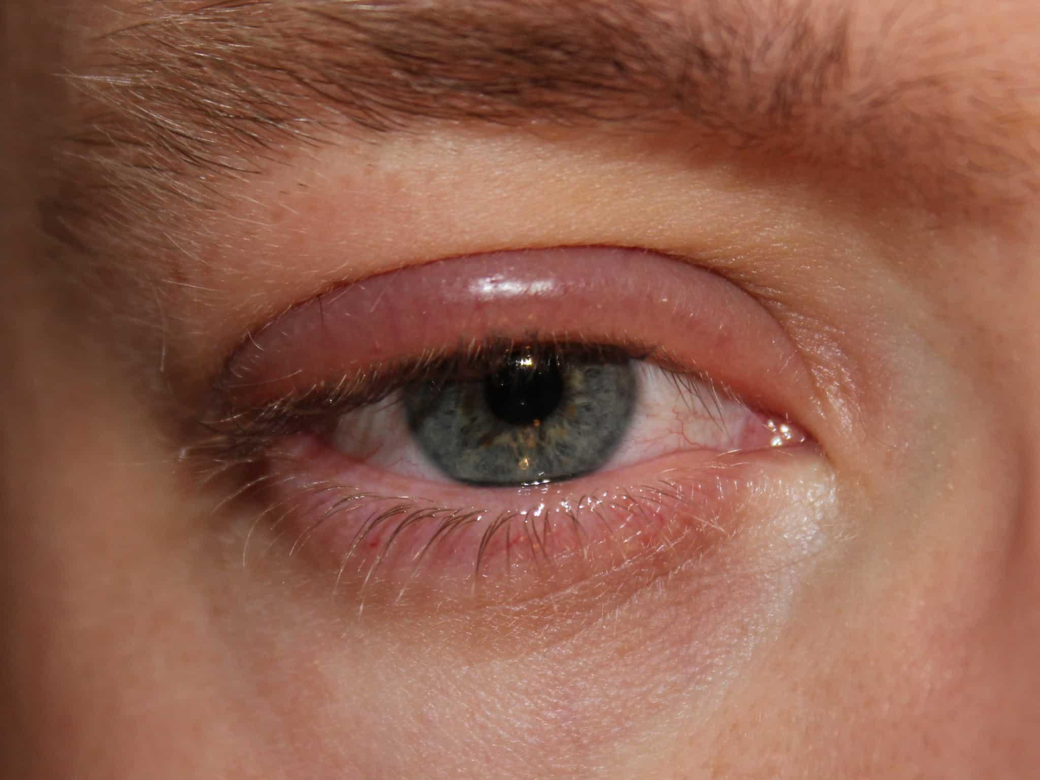болезни век глаз