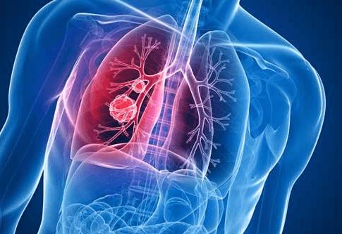 Аллергический трахеит: симптомы и лечение