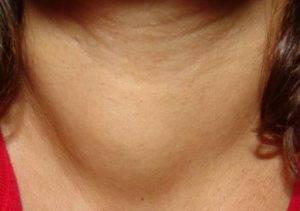 Щитовидная железа 3 степени какое лечение
