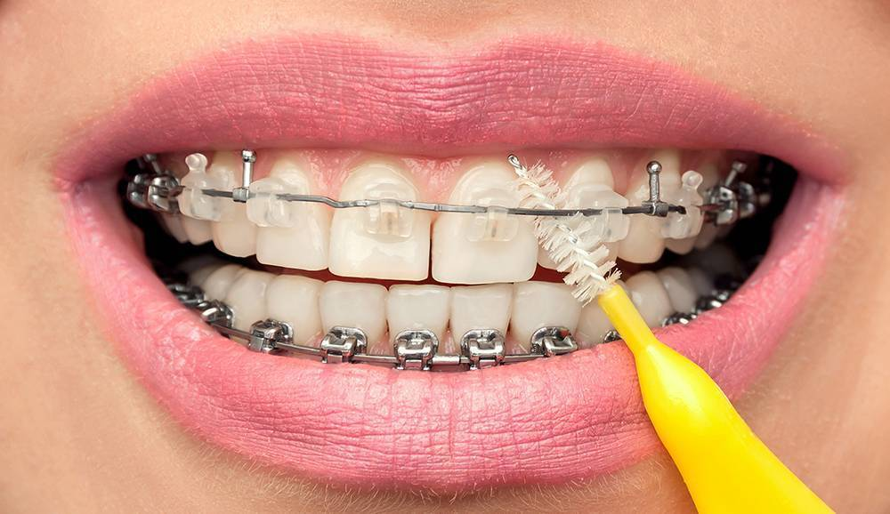 Как правильно ухаживать за брекетами, советы ортодонта